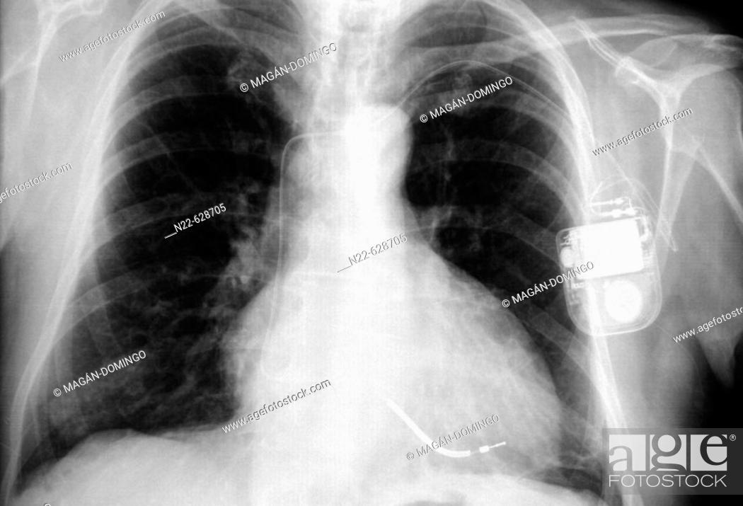 Stock Photo: Pacemaker.