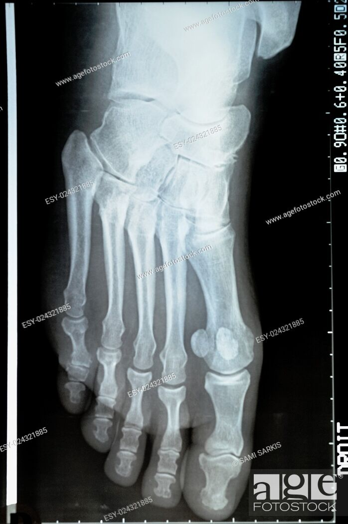 Stock Photo: X-ray image of a mature woman's foot.