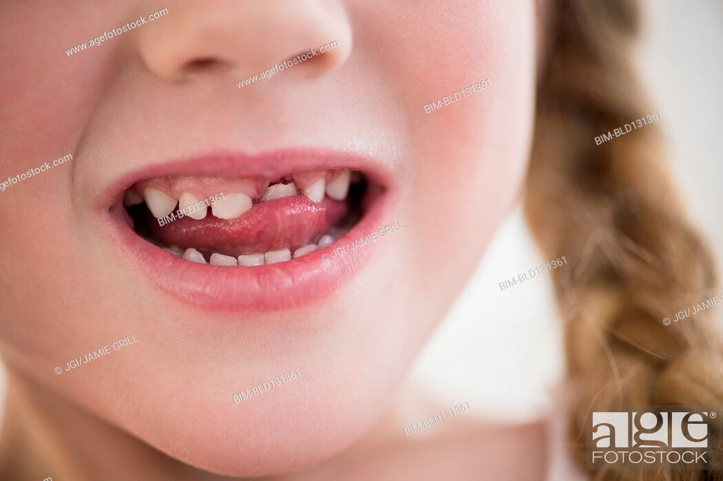 Stock Photo: Caucasian girl wiggling loose tooth.