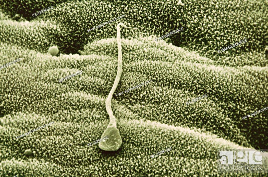Stock Photo: Sperm in uterus.