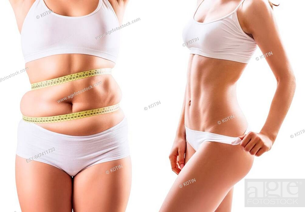 Imagen: Collage of female body before and after weight loss over white background.