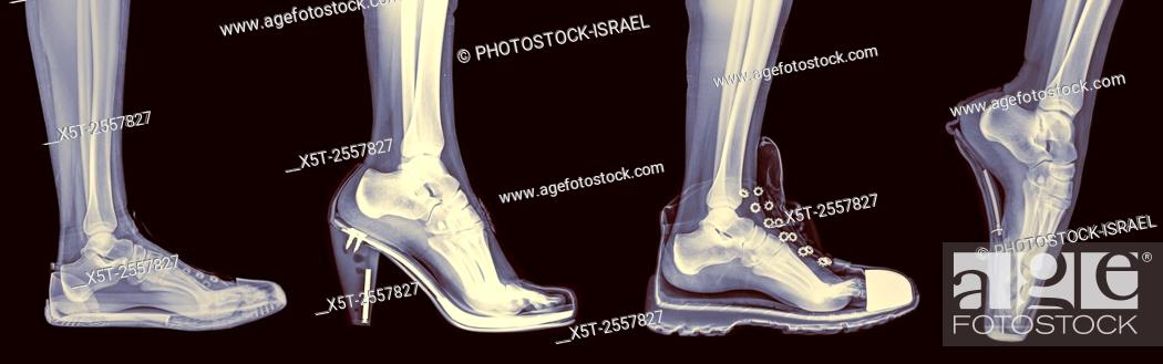 Stock Photo: X-ray of a woman's foot in 4 different shoes (from left to right) Trainers, High Heel, Running and Ballet.