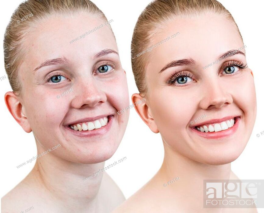 Imagen: Comparison close-up portrait of young woman before and after retouch.