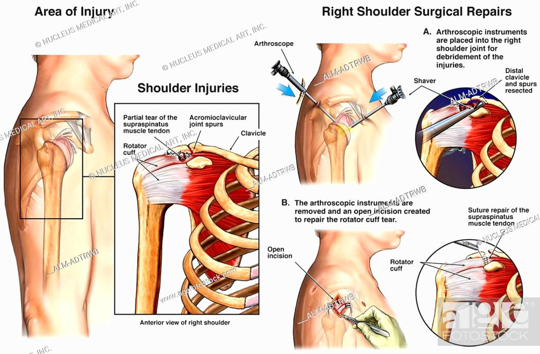 injuries to a rotator cuff An injury to the rotator cuff, such as a tear, may happen suddenly when falling on an outstretched hand or develop over time due to repetitive activities rotator cuff degeneration and tears may also be caused by aging.