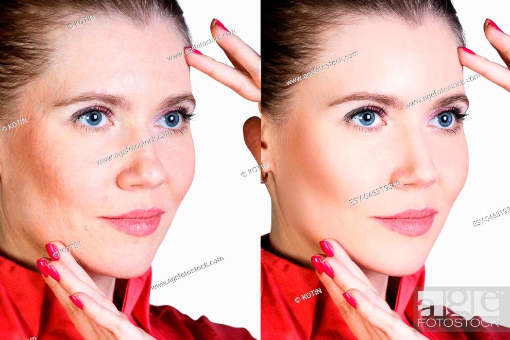 Stock Photo: Middle aged woman with aging singes, wrinkles, blemishes. Before and after cosmetic procedure.