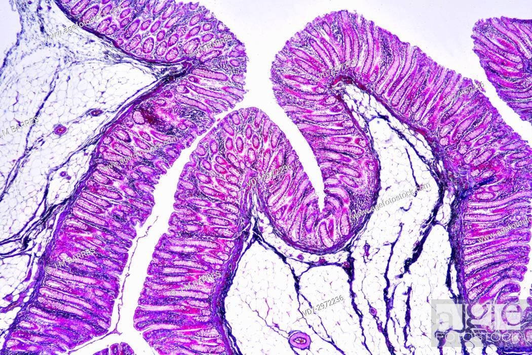 Imagen: Human colon showing epithelium, mucosa, submucosa, adipose tissue, intestinal glands, villi and vessels. Optical microscope X40.