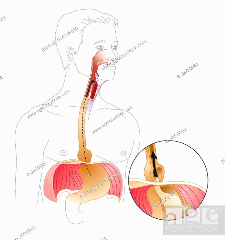 Illustration Of A Hiatal Hernia A Hiatal Hernia Is When Part Of The