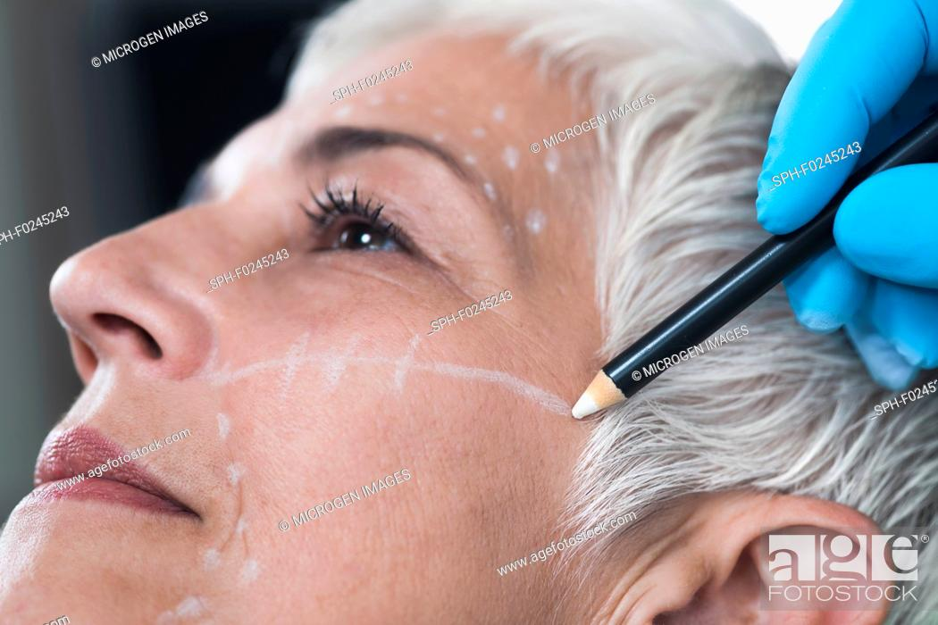 Stock Photo: Doctor's hand in blue surgical glove marking senior women's face for cosmetic injections.
