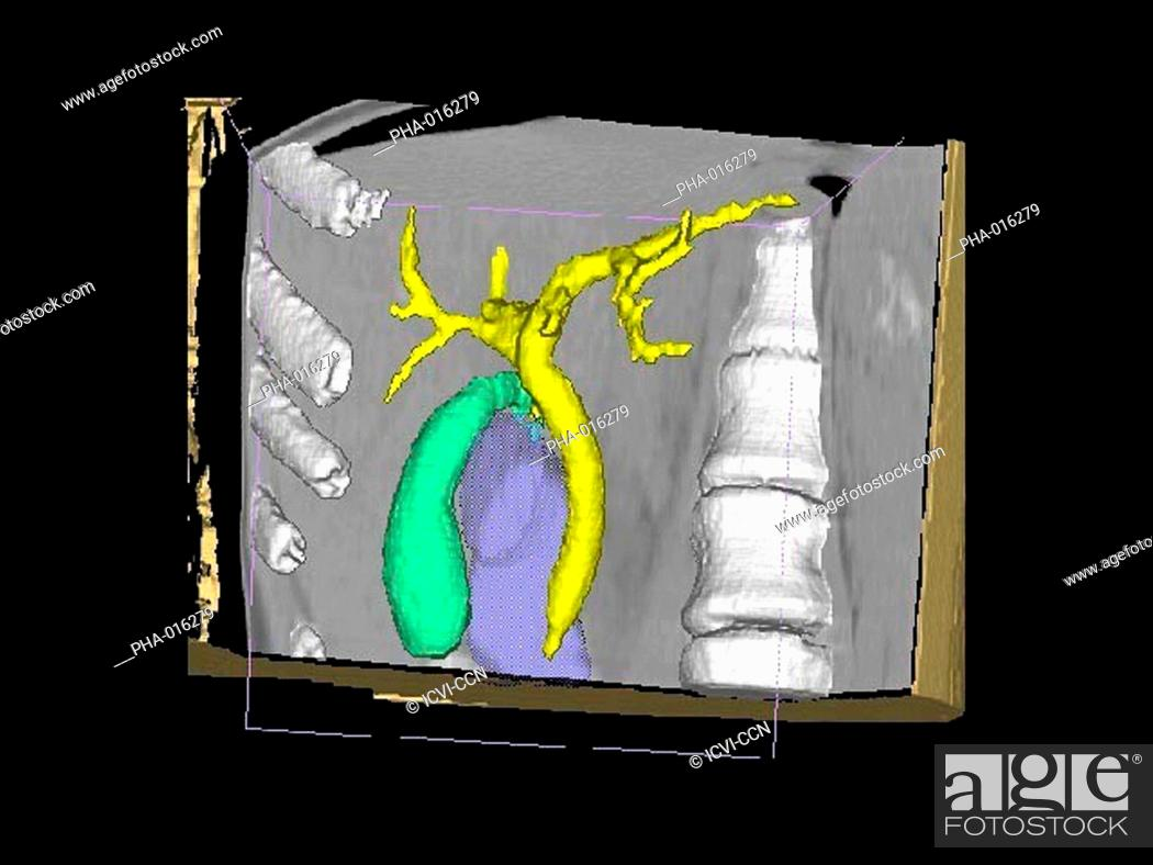 Three-dimensional computed tomographic CT scan