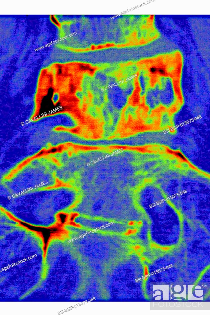 Stock Photo: Paget?s disease, seen in a frontal MRI scan of the L4 and L5 lumbar vertebrae.