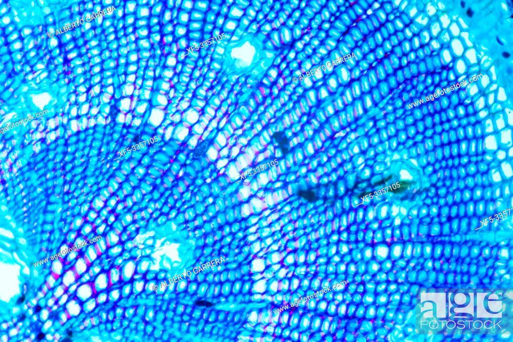 Stock Photo: Pine Root under Optical Microscope.