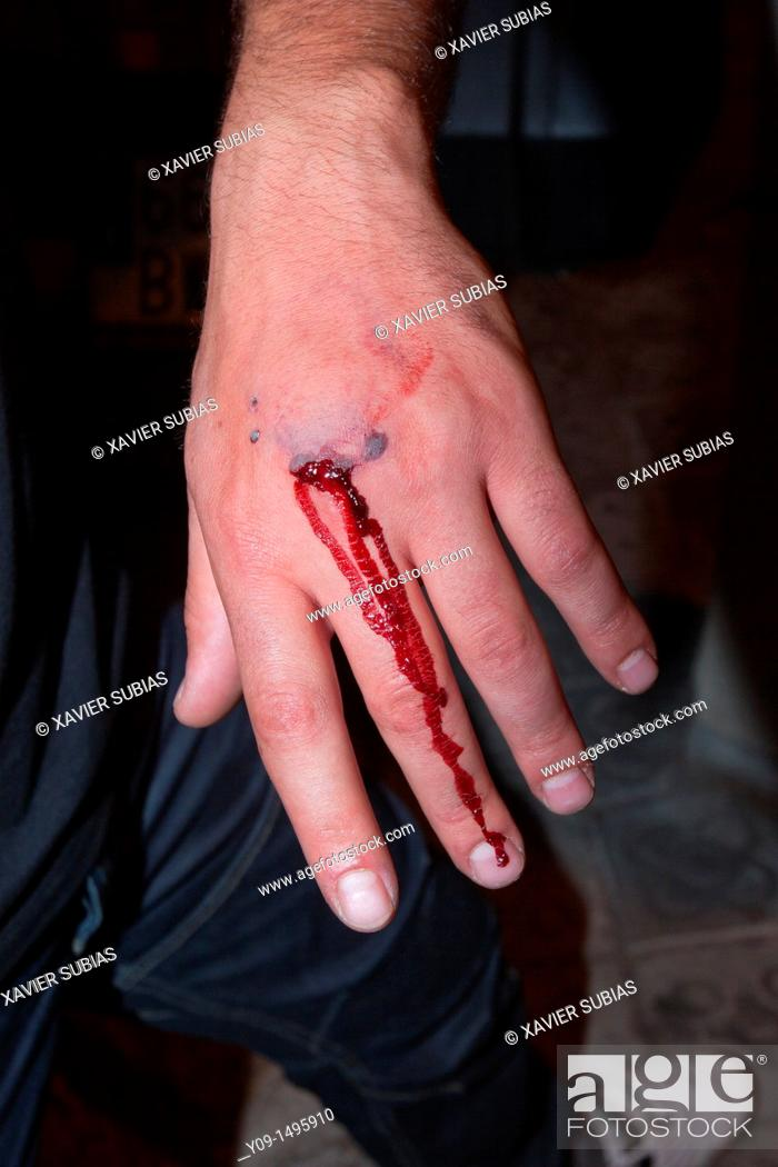 Stock Photo: Injured hand (incidents in Barcelona -Catalonia, Spain- after the FC Barcelona soccer team victory in the Champions League, 2011).