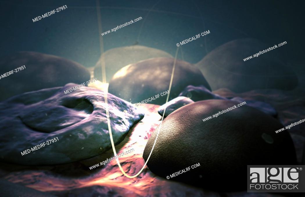 Stock Photo: Merozoites of malaria.