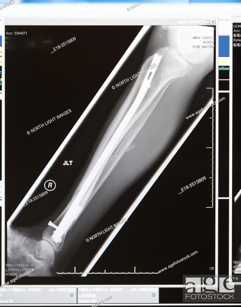 Stock Photo: Canada, BC, North Vancouver. X-ray of broken leg repair. Fibula and tibia.