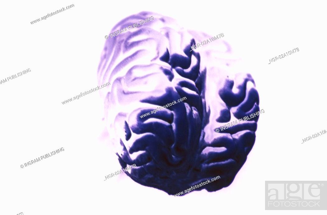 Stock Photo: Brain.