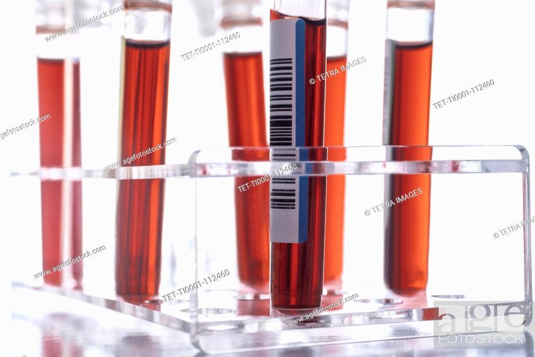 Imagen: Studio shot of Covid-19 blood samples in test tube rack.