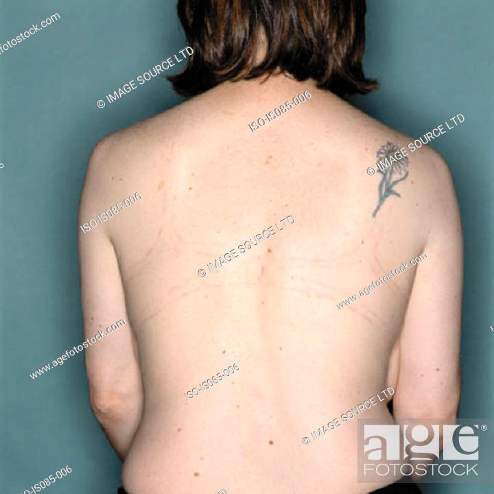 Stock Photo: Female back.