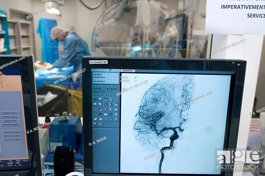 Stock Photo: Reportage in the interventional neuroradiology service in Pasteur 2 Hospital, Nice, France. Treating a cerebral aneurysm through embolization.