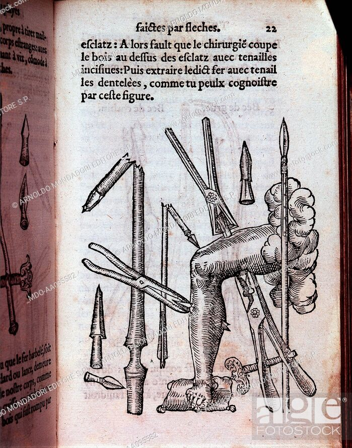 Stock Photo: Surgical forceps (Pince chirurgicale), by Ambroise Paré, 1551, 16th Century.