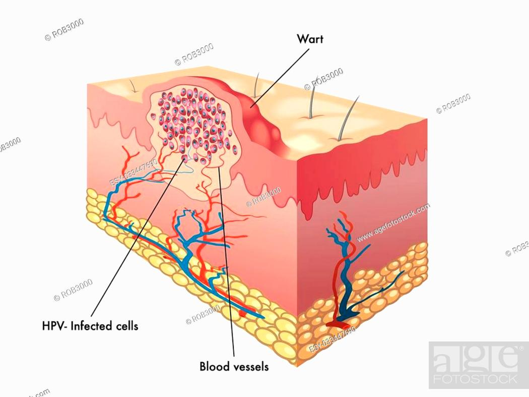 stock vector - medical illustration of a section of a wart