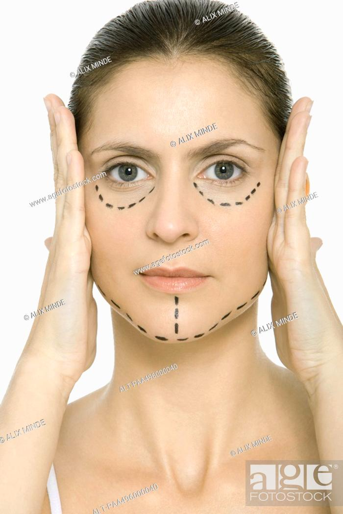 Stock Photo: Woman with plastic surgery markings on face, holding face in hands, looking at camera.