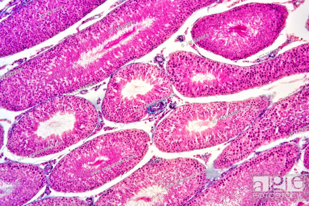 Stock Photo: Human testicle or testis section showing seminiferous tubules, Leydig cells, Sertoli cells, spermatocytes, spermatogonia, spermatides and spermatozoon.